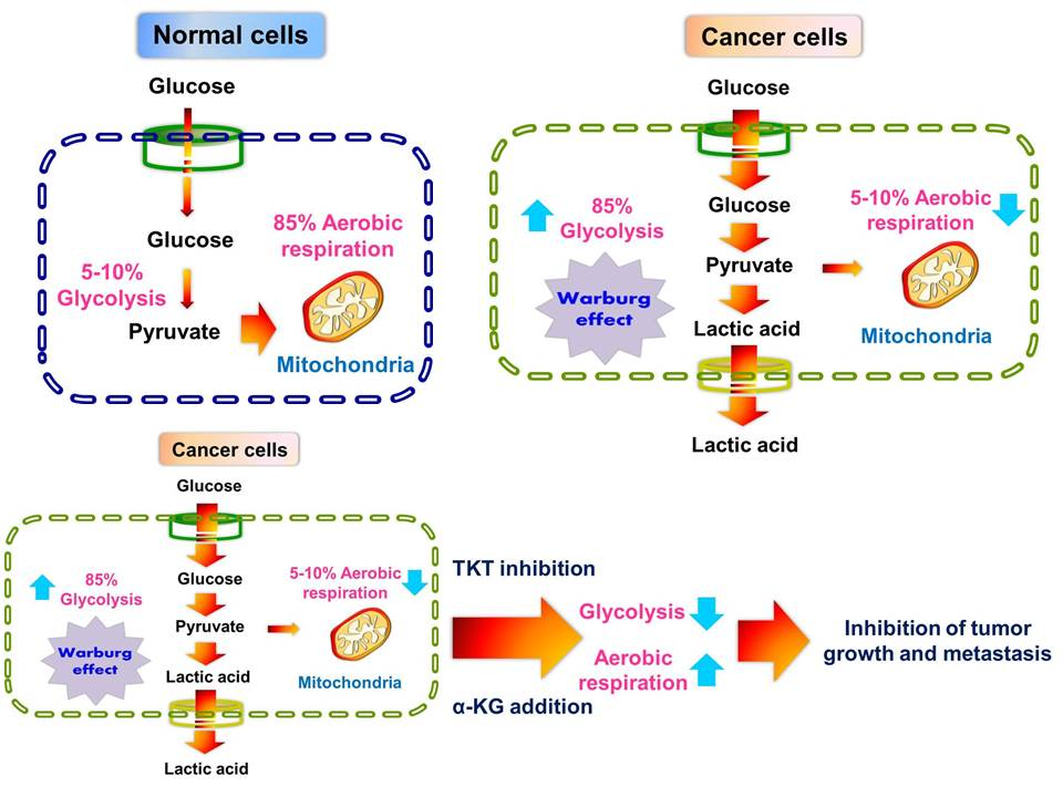 metastatic cancer glucose